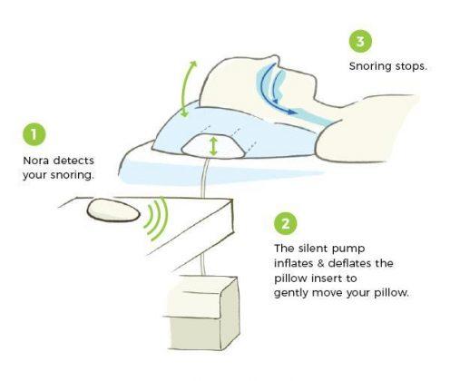 Como funcionar aparelho para parar de roncar dormindo
